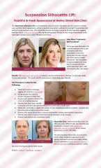 Suspension Silhouette Lift for a Youthful & Fresh Appearance at Harley Street Skin Clinic.pdf